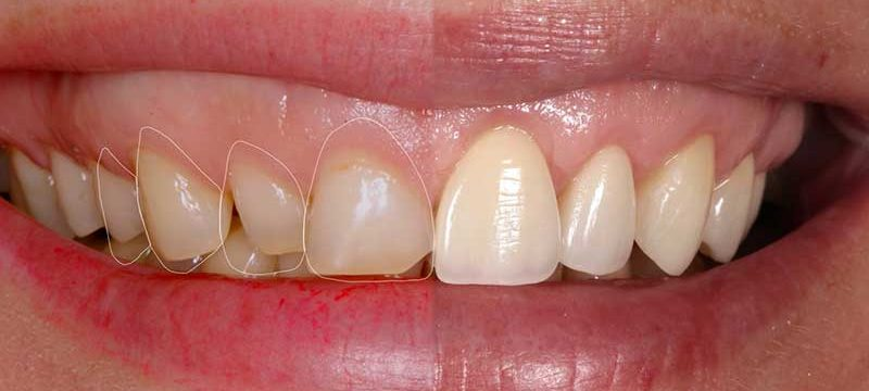 Реставрация и наращивание зубов