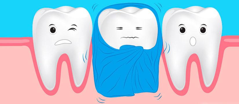 Лечение чувствительности зубов