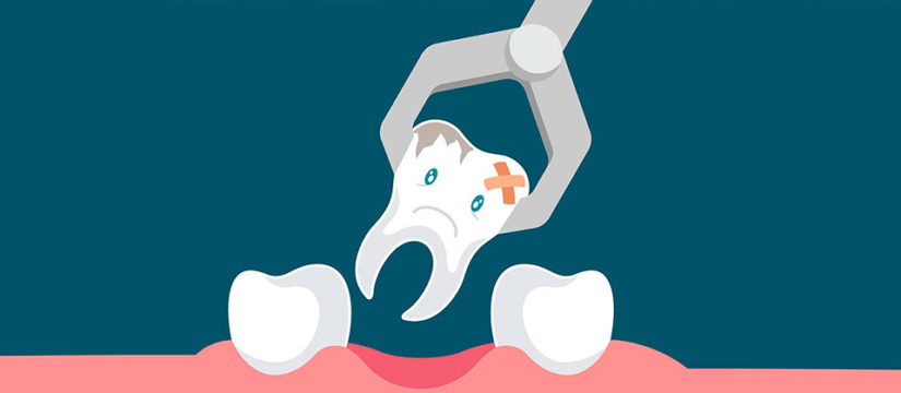 Удаление зубов любой сложности