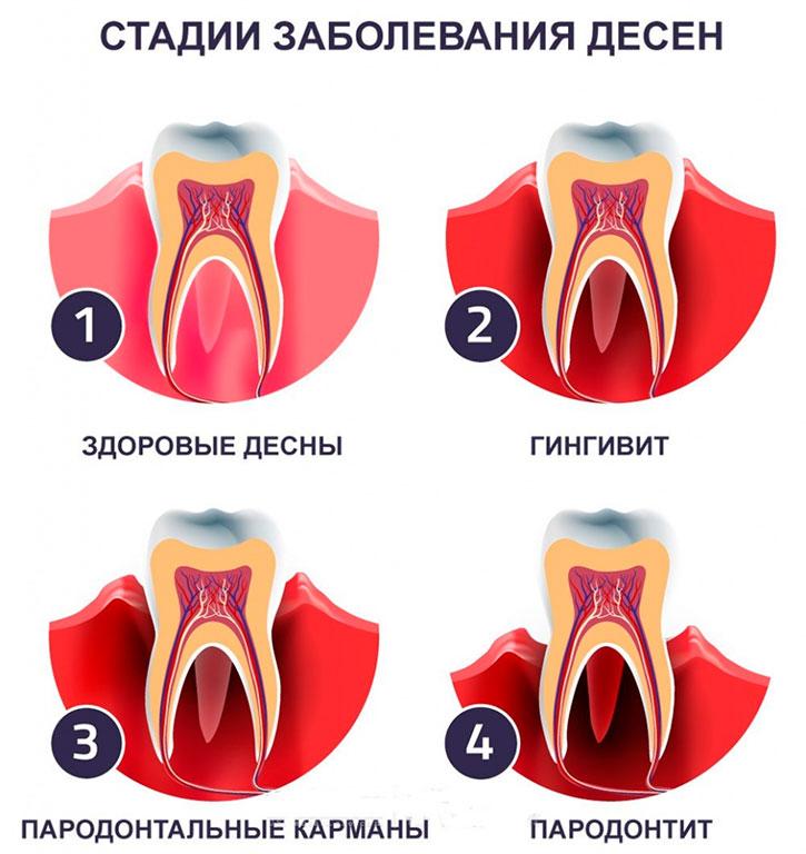 Лечение дёсен в Воронеже