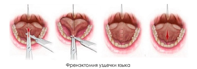 Пластика уздечки языка в Воронеже