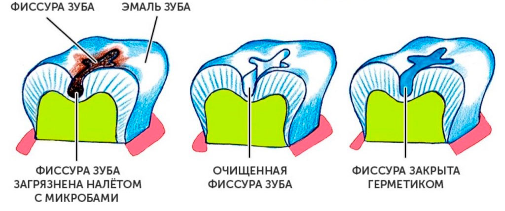 Герметизация фиссур в Воронеже