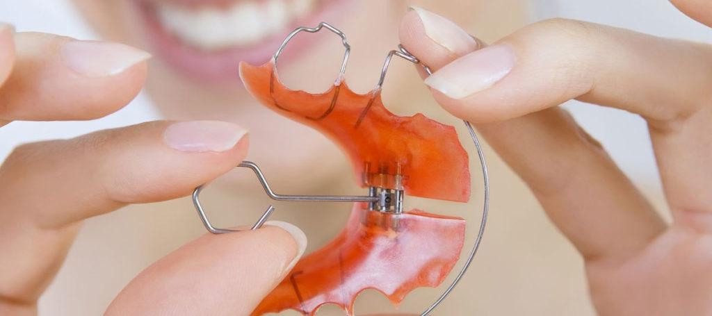 съемных ортодонтических аппаратов
